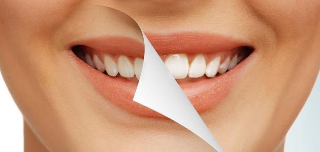 اصفرار الأسنان - فيديو