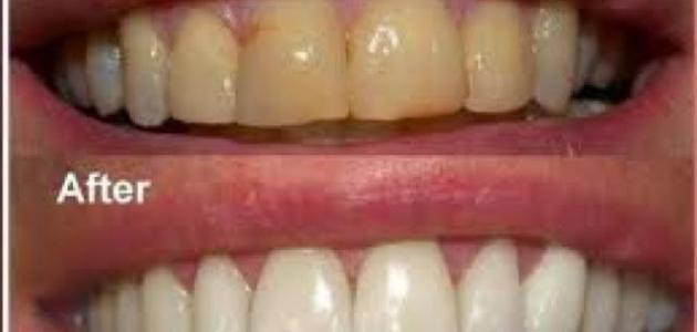كيف أزيل الجير من الأسنان