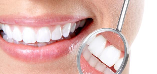 كيف جعل الاسنان بيضاء