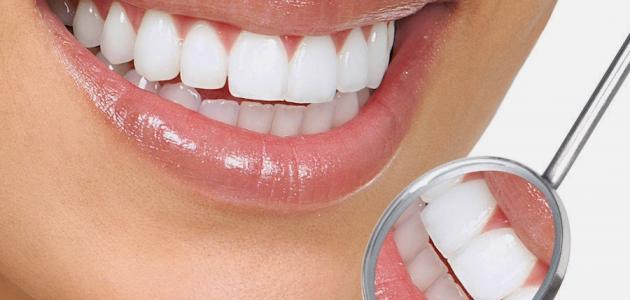 طريقة فعالة لتبييض الأسنان