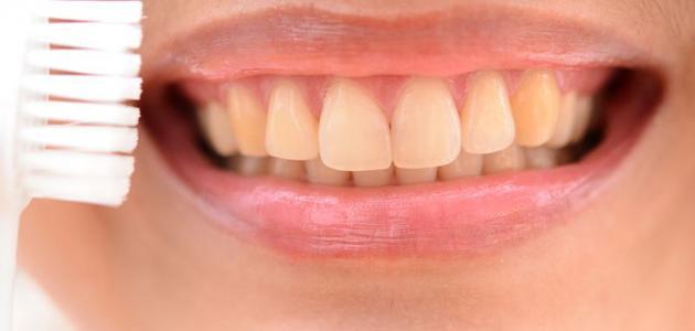 كيف أزيل صفار الاسنان