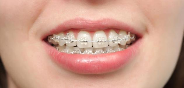 كيف يعمل تقويم الأسنان