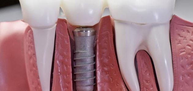 ما هي زراعة الأسنان