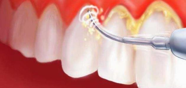 إزالة جير الأسنان - فيديو