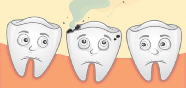 إزالة تسوس الأسنان