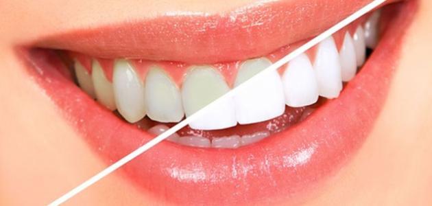 كيف يتم تبييض الأسنان