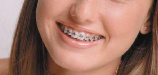 ما بعد تقويم الاسنان