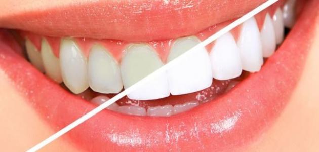 طريقة لإزالة الجير من الأسنان