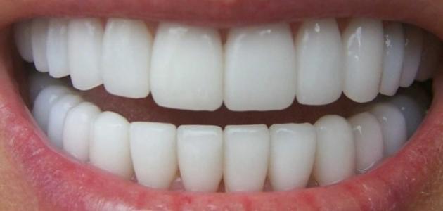 كيفية تنظيف الأسنان الصفراء