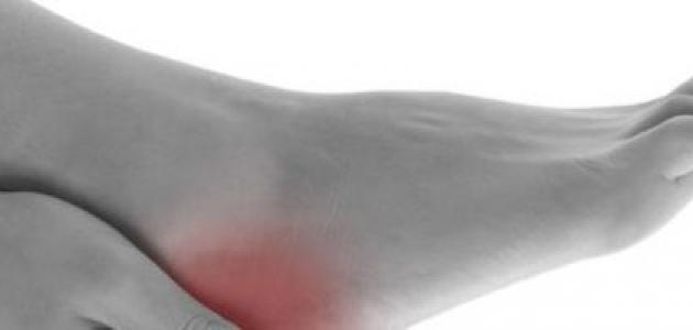 نقص الأملاح المعدنية في الجسم
