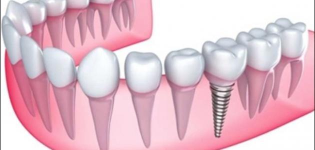 كيف زراعة الاسنان