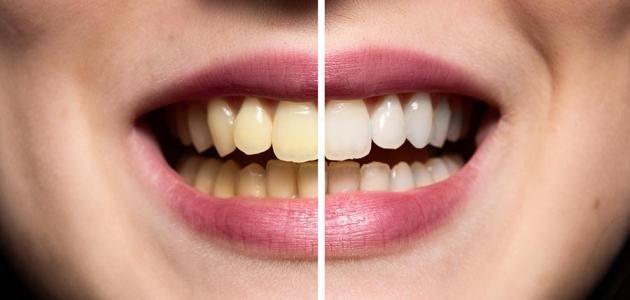 طريقة تبيض الاسنان