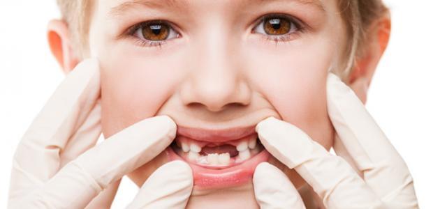 فقدان الأسنان عند الأطفال ودور الأهل - فيديو