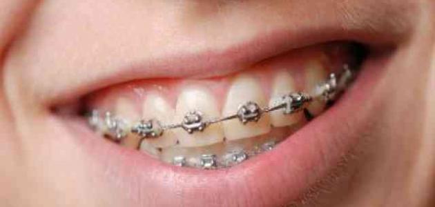 خطوات تقويم الأسنان