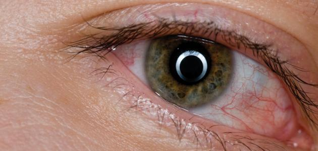 علاج انتفاخ جفن العين - فيديو