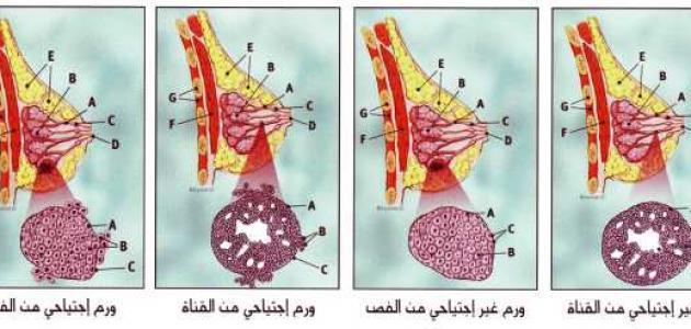 علاج سرطان الثدي الخبيث حروف عربي