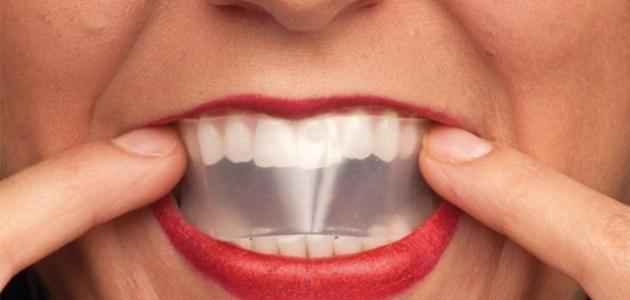 طريقة تبييض حشوات الأسنان