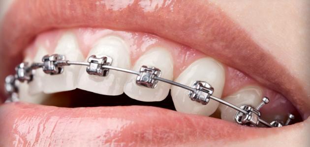 ما هي أضرار تقويم الأسنان - فيديو