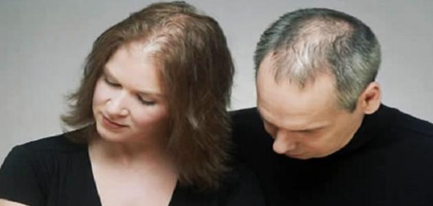 نقص فيتامين د يسبب تساقط الشعر