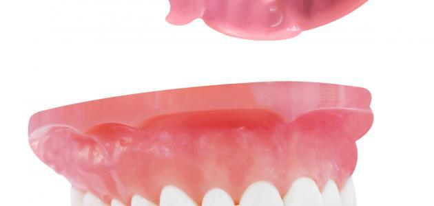 ما سبب اصفرار الاسنان