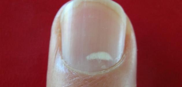 ما سبب ظهور نقط بيضاء على الأظافر