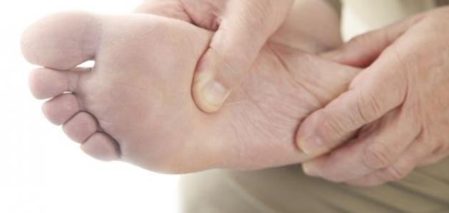 كيفية علاج مسامير القدم