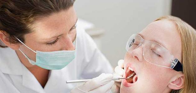 أنواع كسر الأسنان نتيجة حادث ما - فيديو