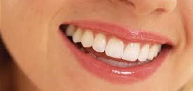طريقة لتبييض الأسنان