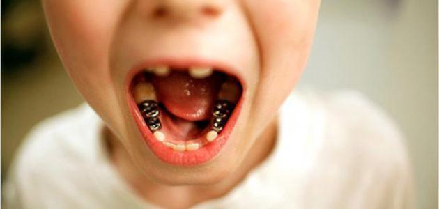 أنواع تآكل الأسنان - فيديو