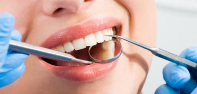 كيف نعالج تسوس الأسنان دون طبيب