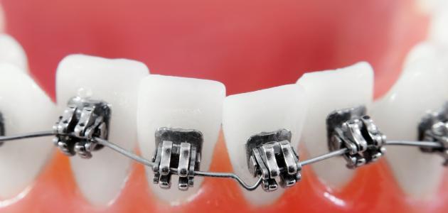 معلومات عن تقويم الأسنان