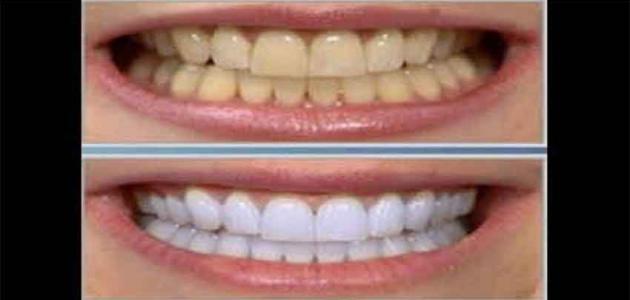 وسائل لإزالة الجير من الأسنان
