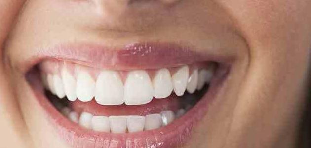 طرق تبييض الأسنان بسرعة