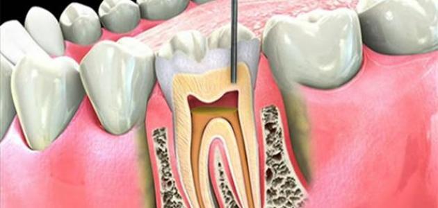علاج عصب الأسنان في البيت