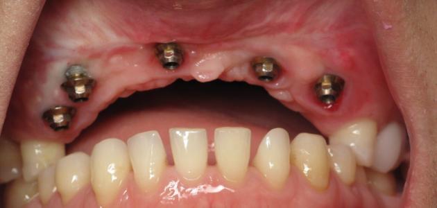 كيف تزرع الأسنان