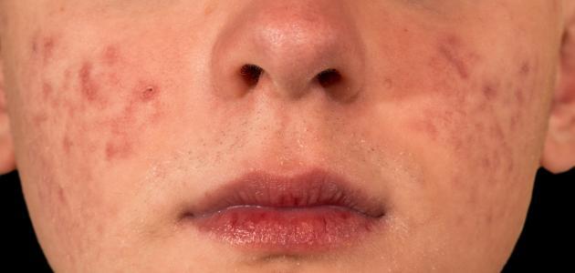 أعراض مرض كاوازاكي
