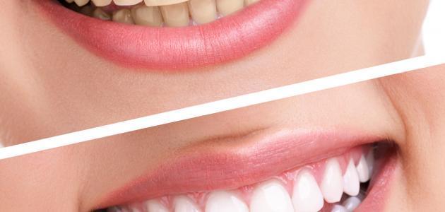 فوائد الكركم للأسنان