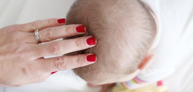 أسباب ظهور القشرة عند الرضع
