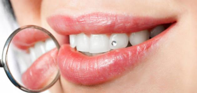 كيف تحصل على أسنان بيضاء