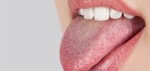 ما أسباب جفاف الفم